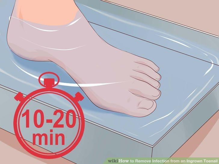 Remove Infection from an Ingrown Toenail | Exercises