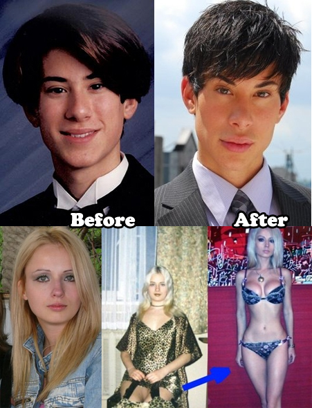 Real Life Barbie Plastic Surgery Before And After ...