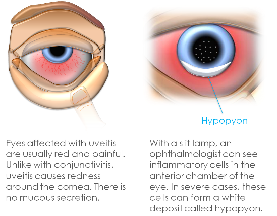 Uveitis symptoms in adults