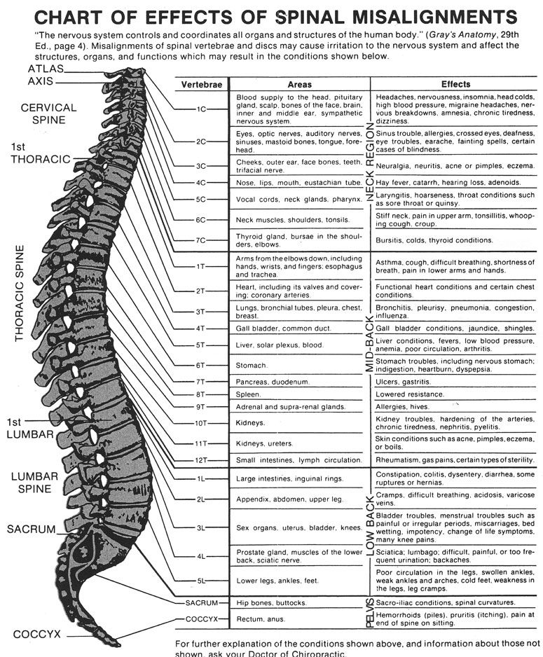 Sciatica Chart Google Search Health And Fitness Pinterest