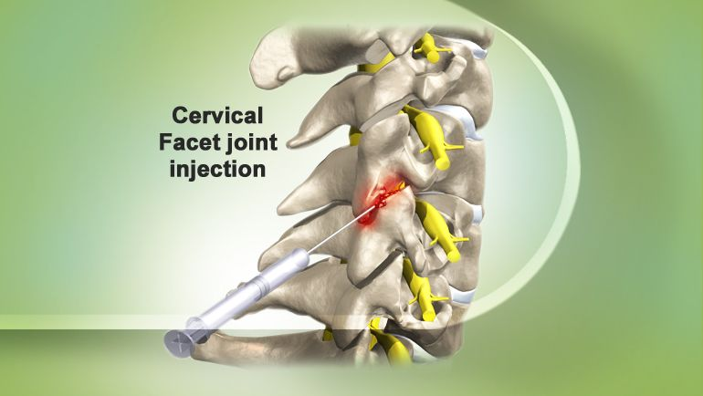The Celiac Plexus Is A Bundle Of Nerves That Surrounds The Aorta