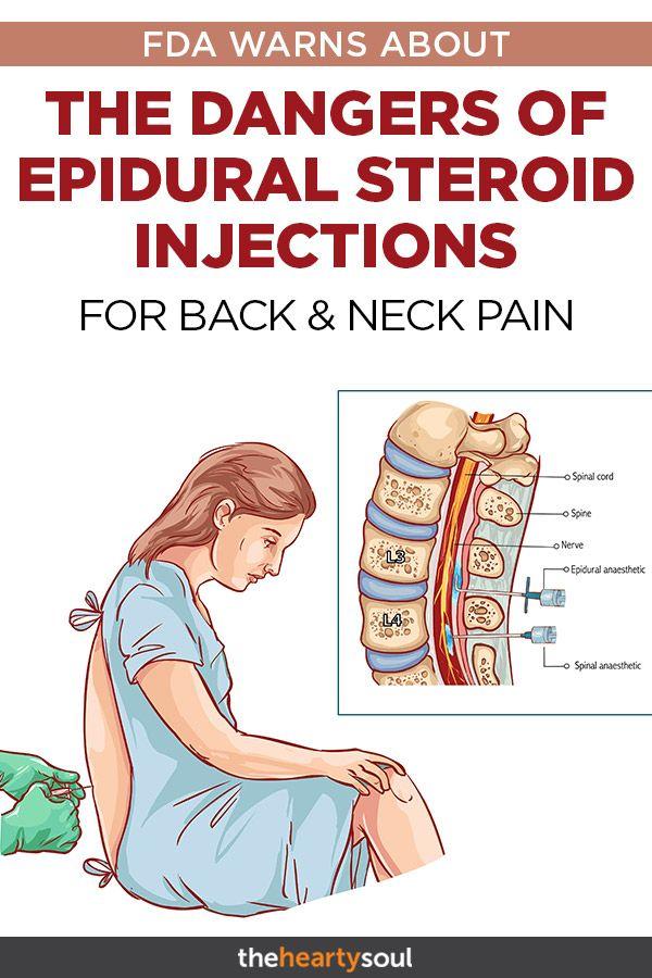 Migraine caused by steroids makanan yang mengandung steroid