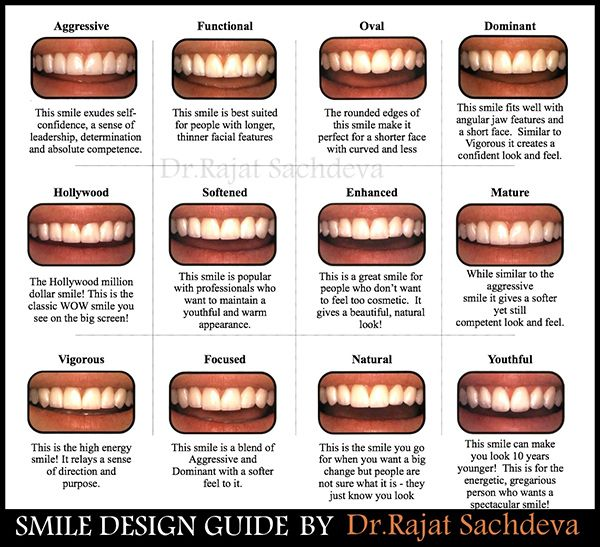 Dental Smile Design  Analysis  Smile Design  Analysis Dental