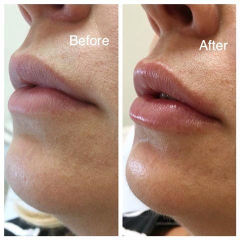 Beautiful Subtle Lip & Chin augmentation enhancement using