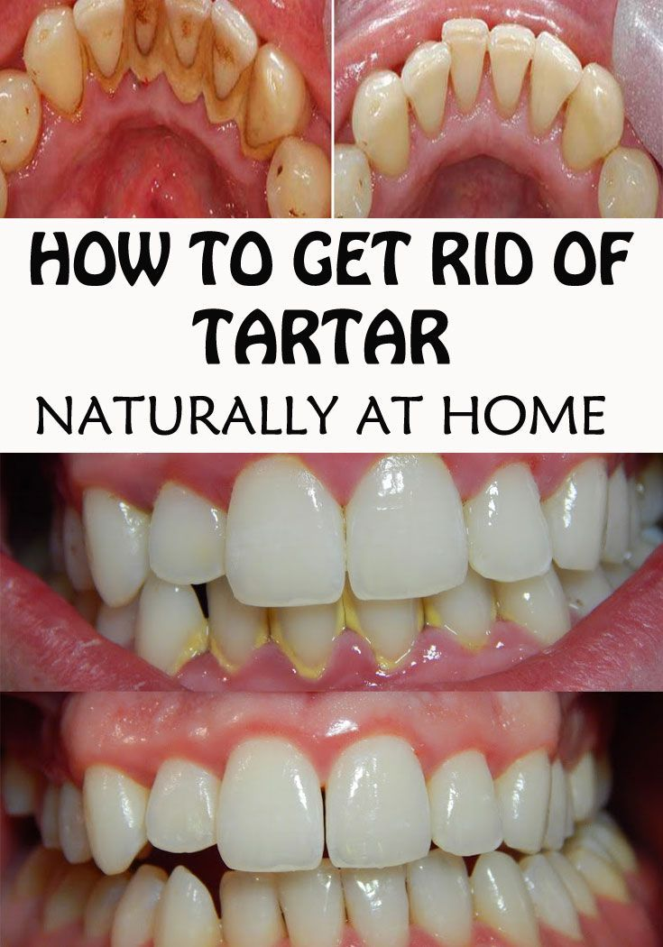 how to get rid of calculus on teeth at home