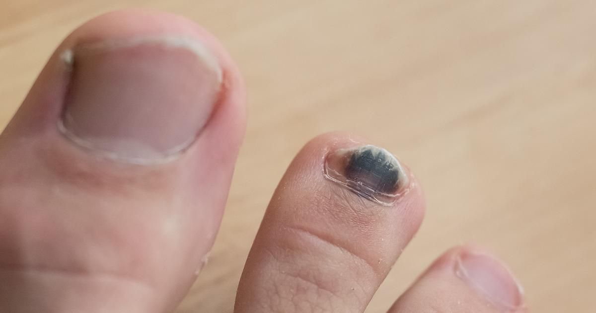 Our Toenails Are Naturally A White Or Cream Color Though They Can Change For Many Reasons If An Individual Regula Toe Nails Toenail Turning Black Nail Colors