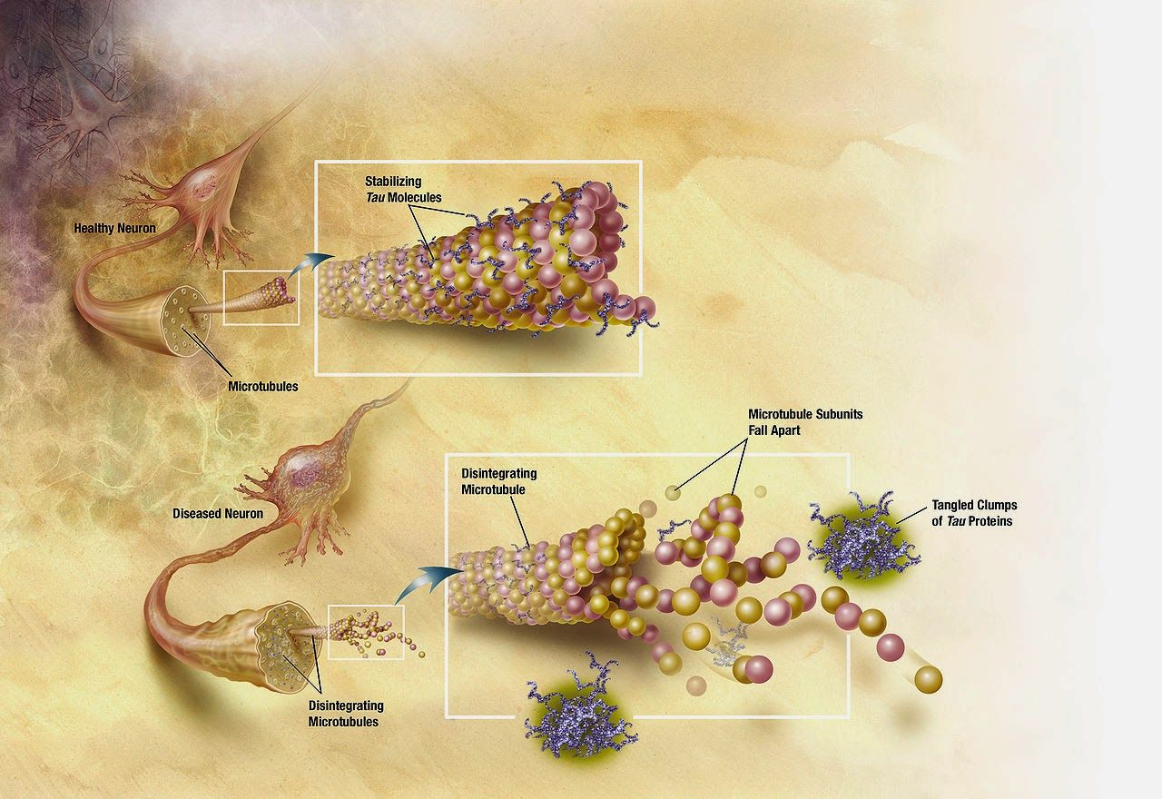 Solanezumab and Alzheimer's Alzheimer's disease