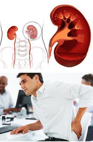 العلاج الطبيعي لمرضي الفشل الكلوي بدون غسيل الكلي و زرع الكلي Treatment Kidney Failure Health