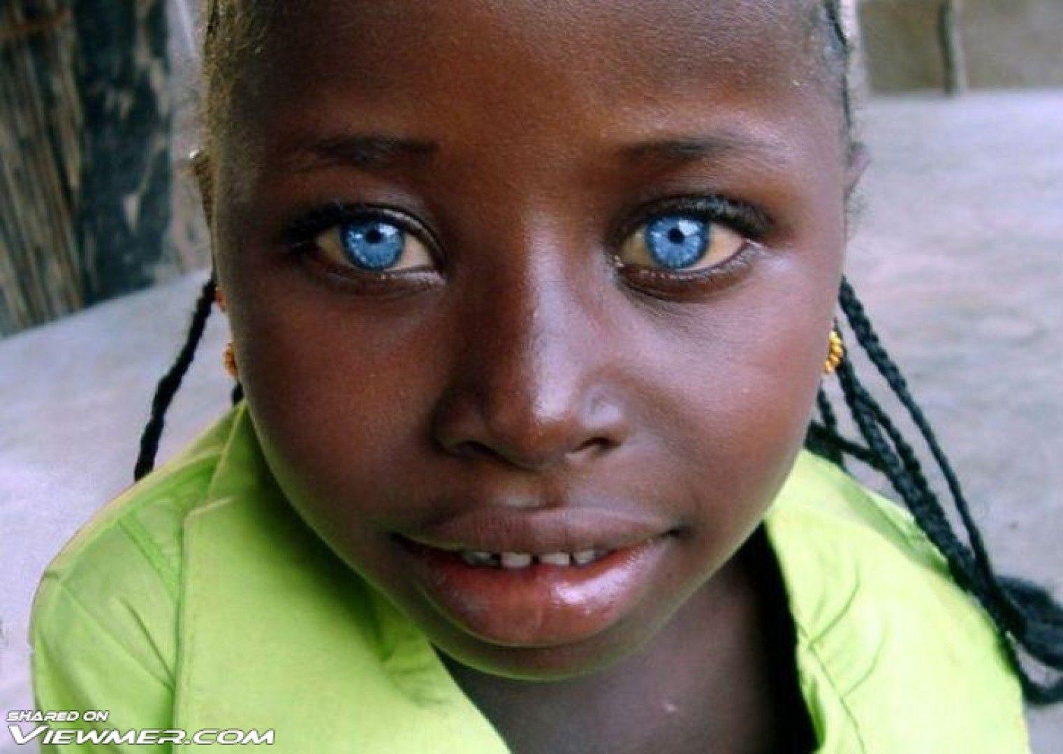 Cute Girl With Blue Eyes Dark Skin Amp Light Eyes