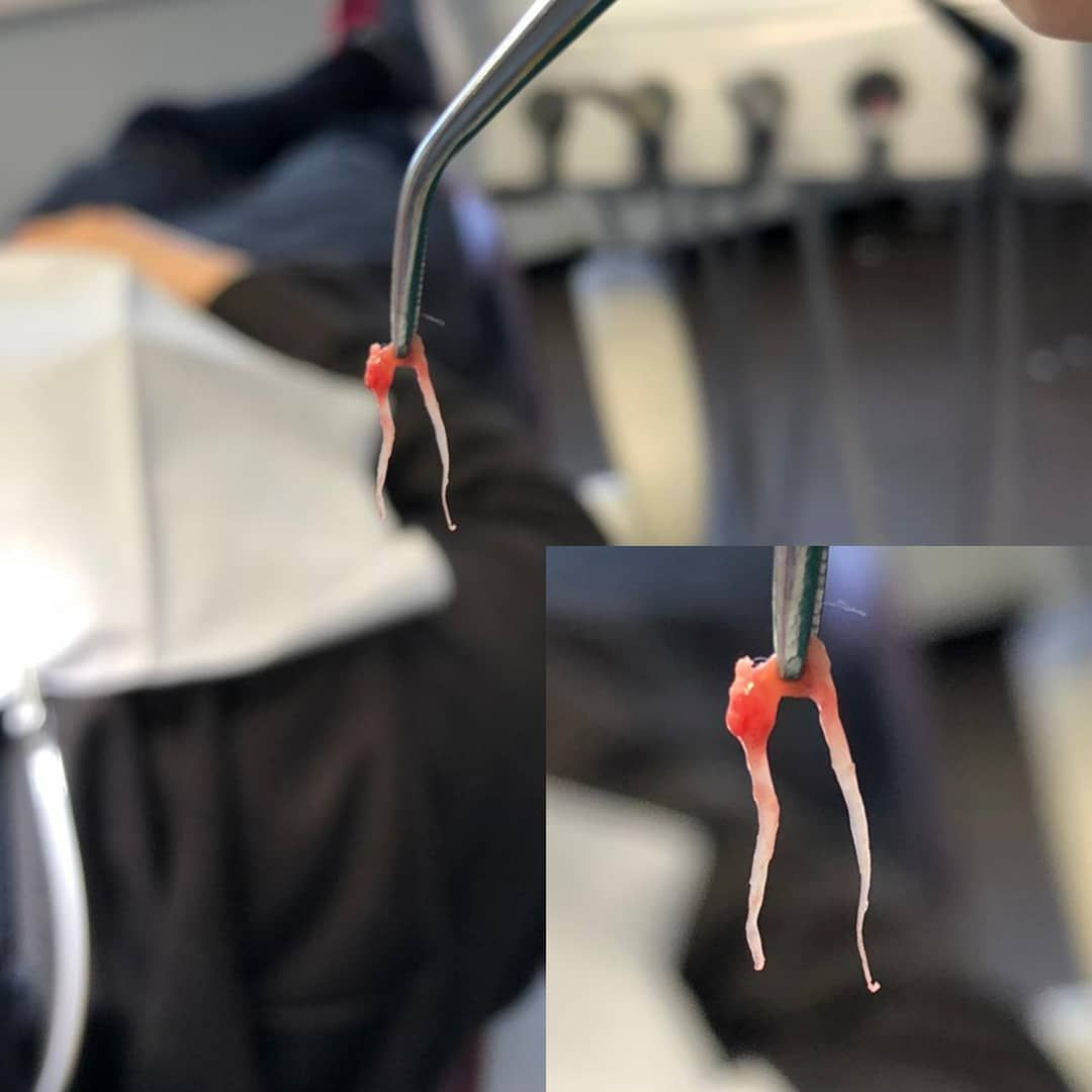 Dental pulp removed from the tooth dentist dental