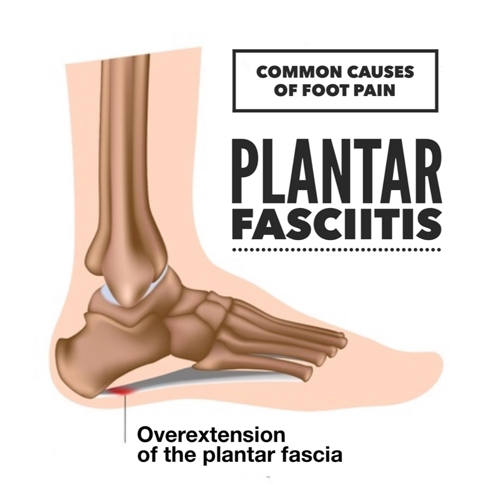 Plantar Fasciitis is a common cause of heel and foot pain caused by ...