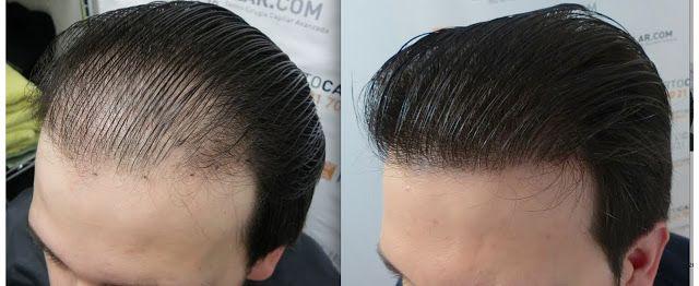 زراعة الشعر في السعودية ما هو زرع الشعر زراعة الشعر في السعودية Best Hair Transplant Hair Transplant Cost Fue Hair Transplant