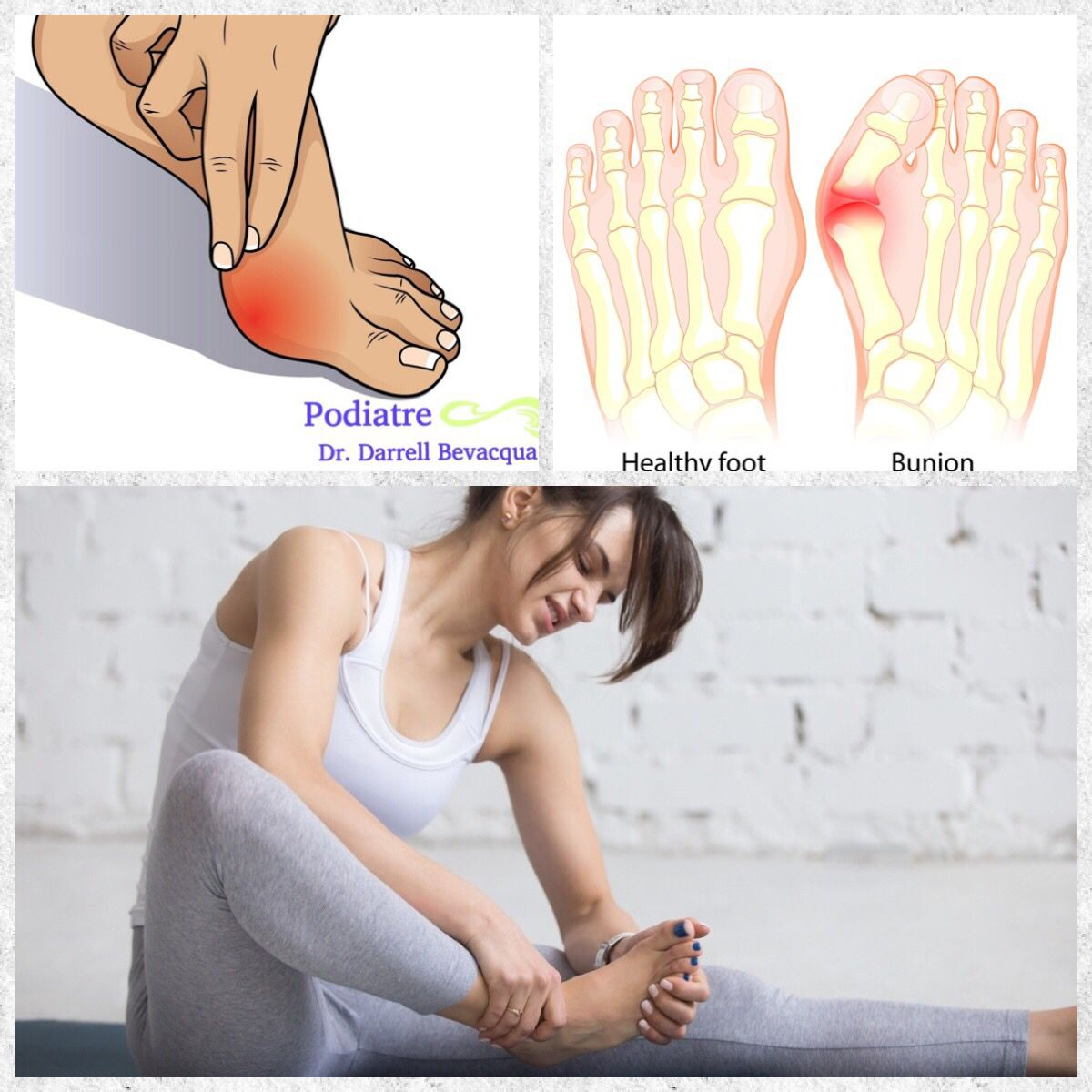 7 Ways to Treat Bunions A bunion is a deformity of the