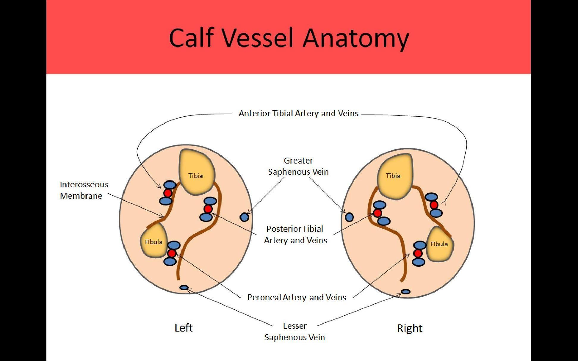 Ultrasound Registry Review Extremity Venous Vascular Pinterest