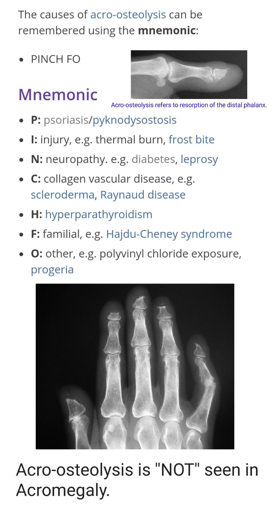 19++ Signs of osteoporosis on x ray viral