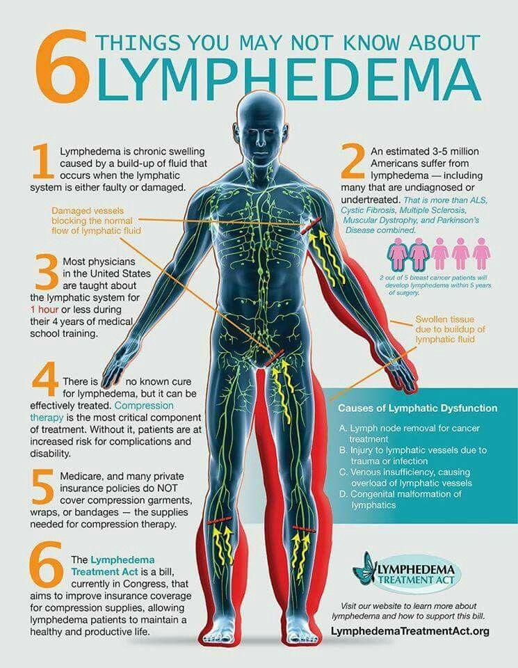 Lymphatic System Milroy Disease Pinterest Lymphatic System