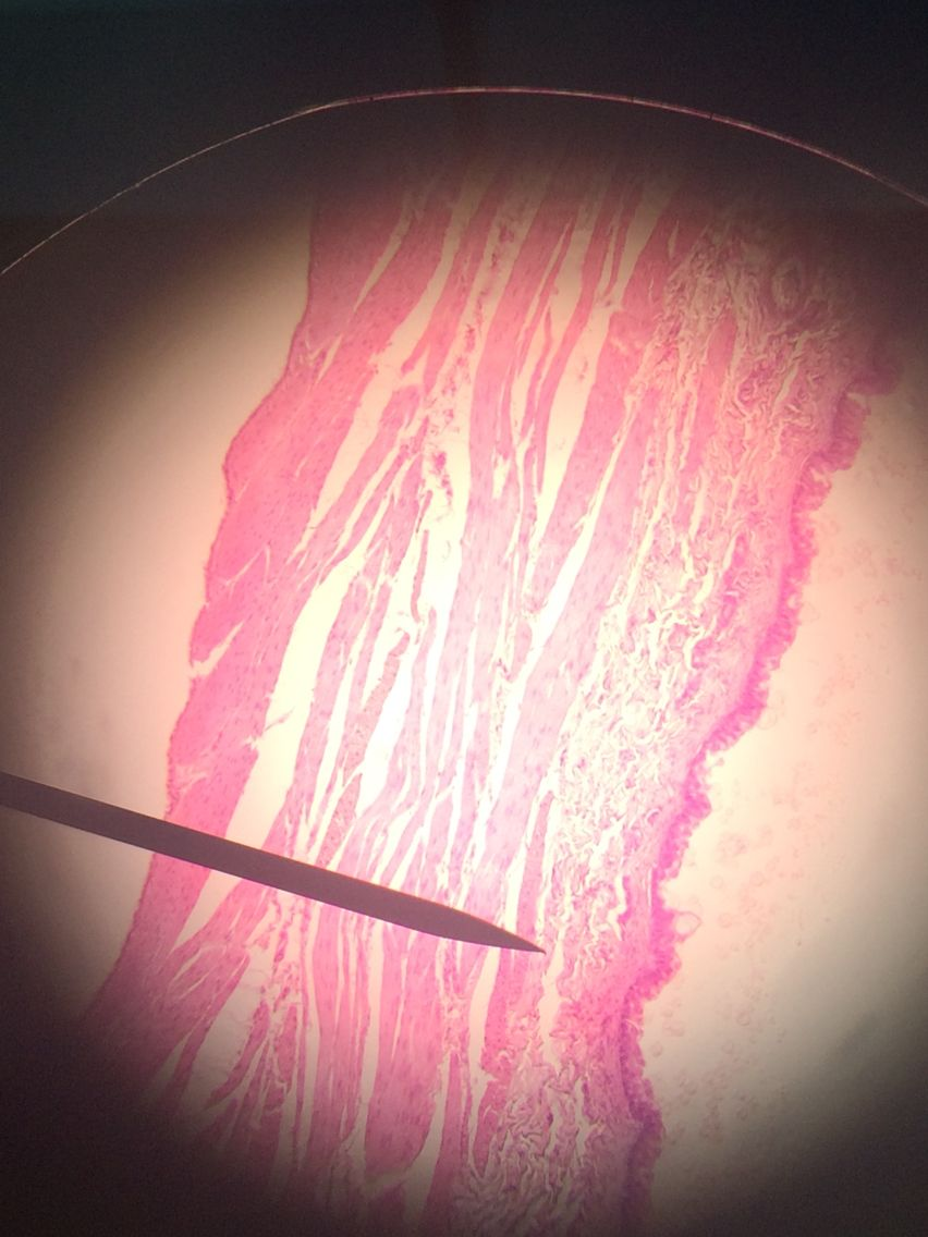 Distended bladder histology | Endocrine, Urinary, Reproductive ...