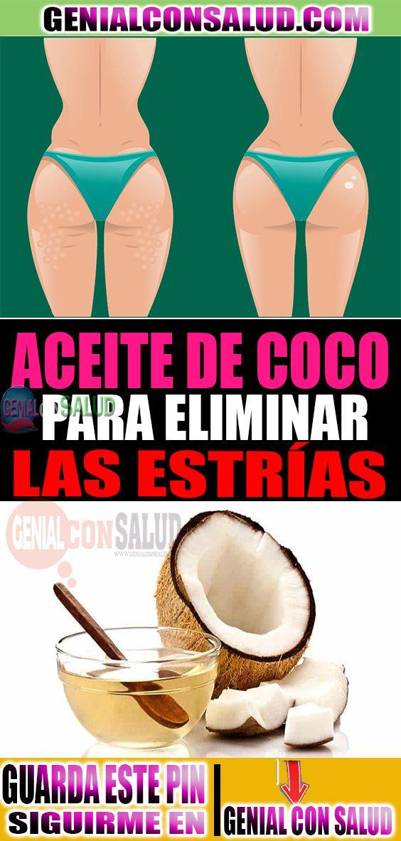 El aceite de coco para varices