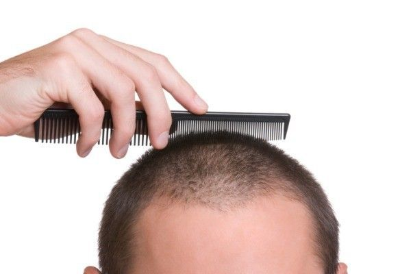Image result for Avail the Best Hair Transplant