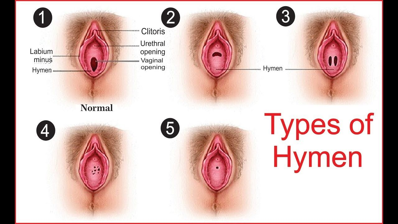 Five Types Of Hymens Diagram Anatomy Note World Pinterest