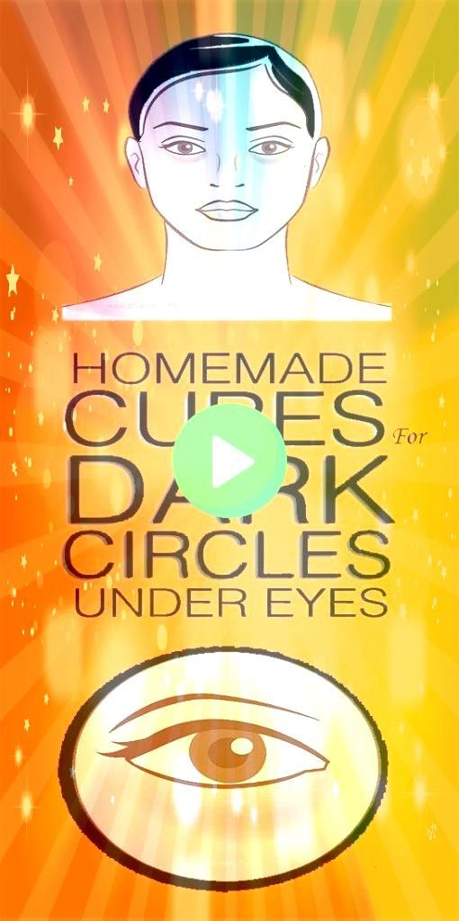 Natural Remedies To Tackle Eye Bags And Dark Circles Eye bags and dark circles are a common problem which becomes more prominent as we age It is different for different p...