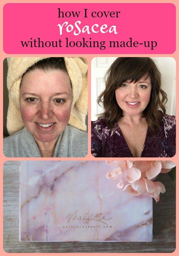 makeup to cover rosacea Best makeup for rosacea, Rosacea