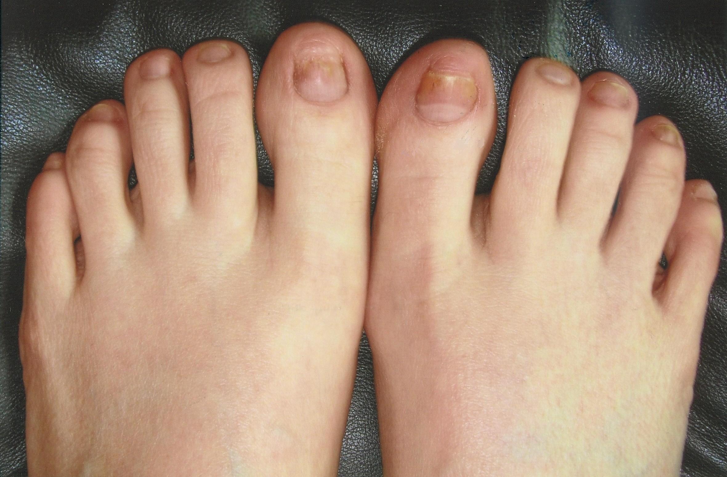 Finger toe nail fungus treatments ebook for remedies | Toenail ...