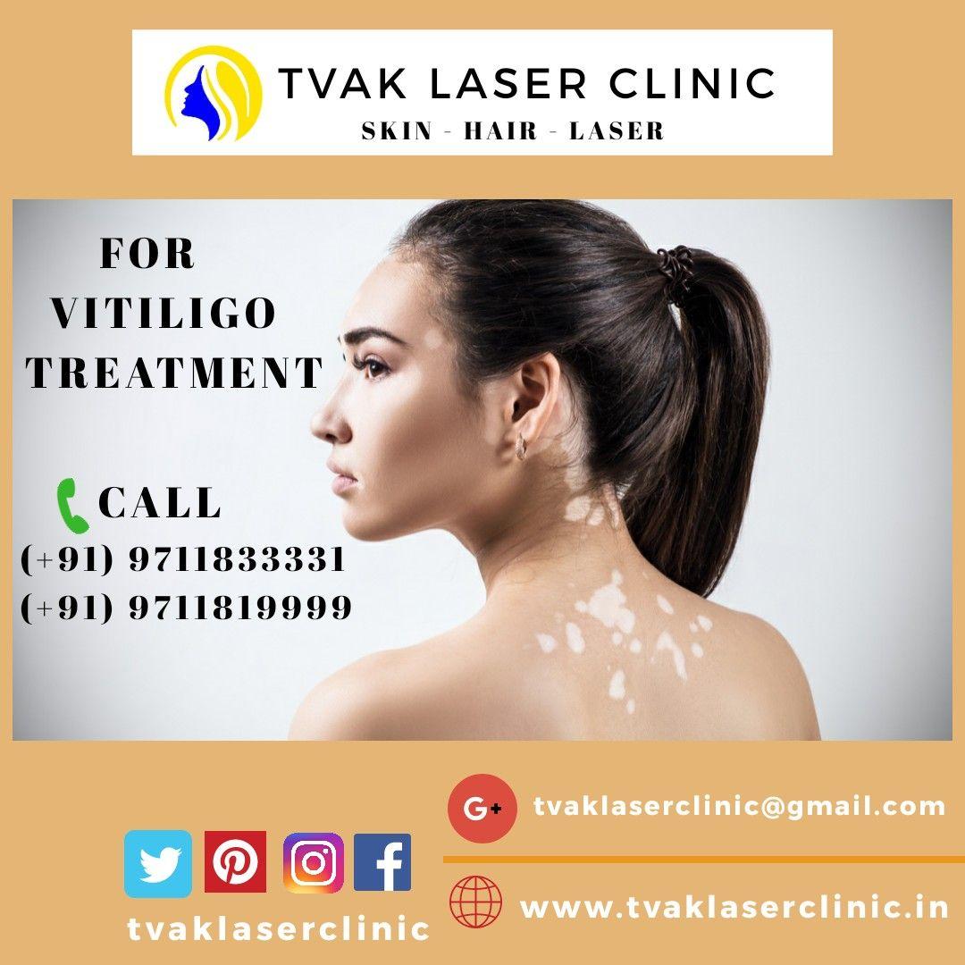 Vitiligon Treatment