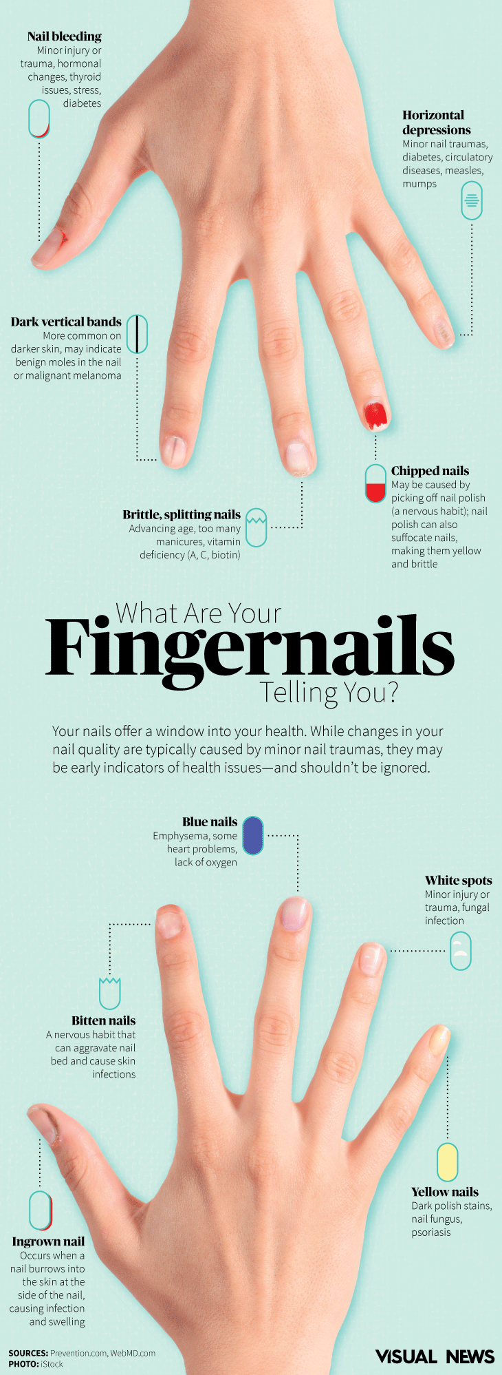 Fingernails Provide Clues To General Health Photo Of Beau S Lines Terry Nails And Yellow Nail Syndrome Pinterest