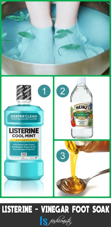 7 Listerine Foot Soak Recipes for Baby Soft Feet ...