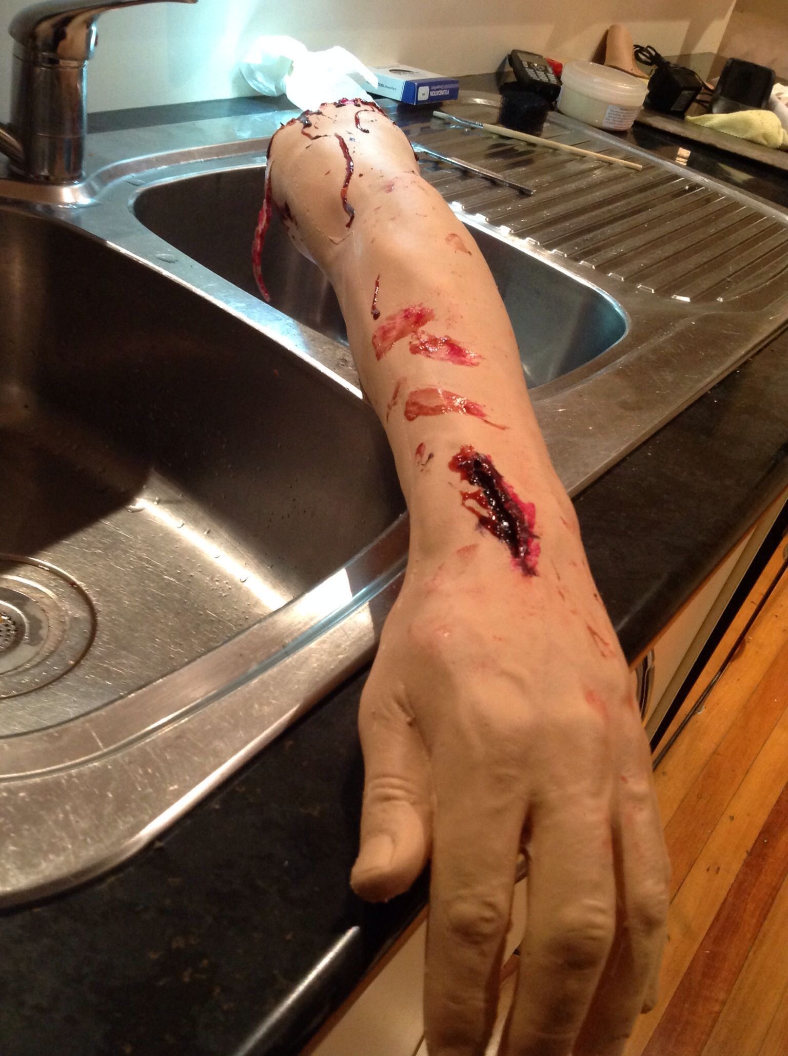 Open Wound To Back Of Hand, With Blood Stained Finger