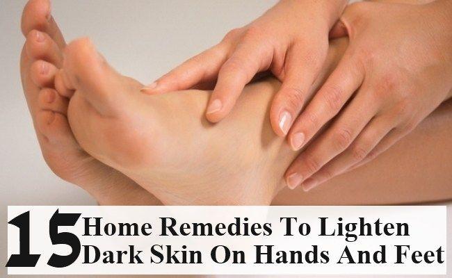 15 Simple Home Remedies To Lighten Dark Skin On Hands and Feet