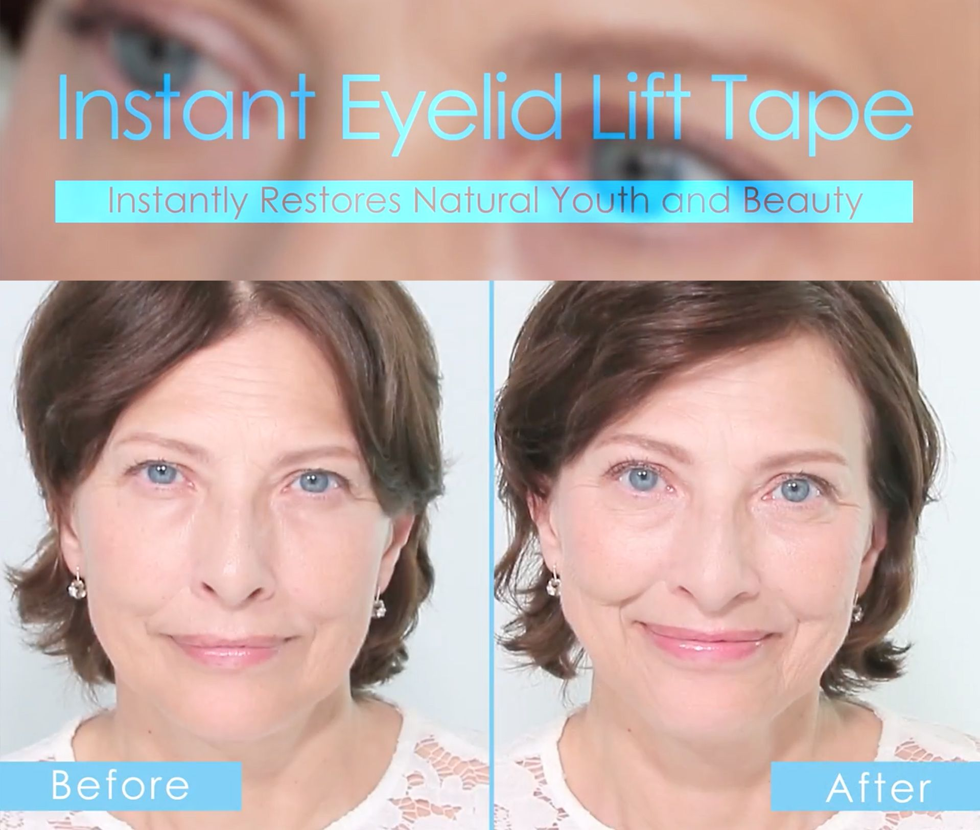 How to even out your eyelids without surgery youtube - There Is No Way To Prevent Eyelid Drooping But Instant Eyelid Lift Tape Can Make Your Eyes Look