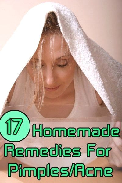 home remedies for pimples and blackheads for oily epidermis ways to get rid of acne in five minutes