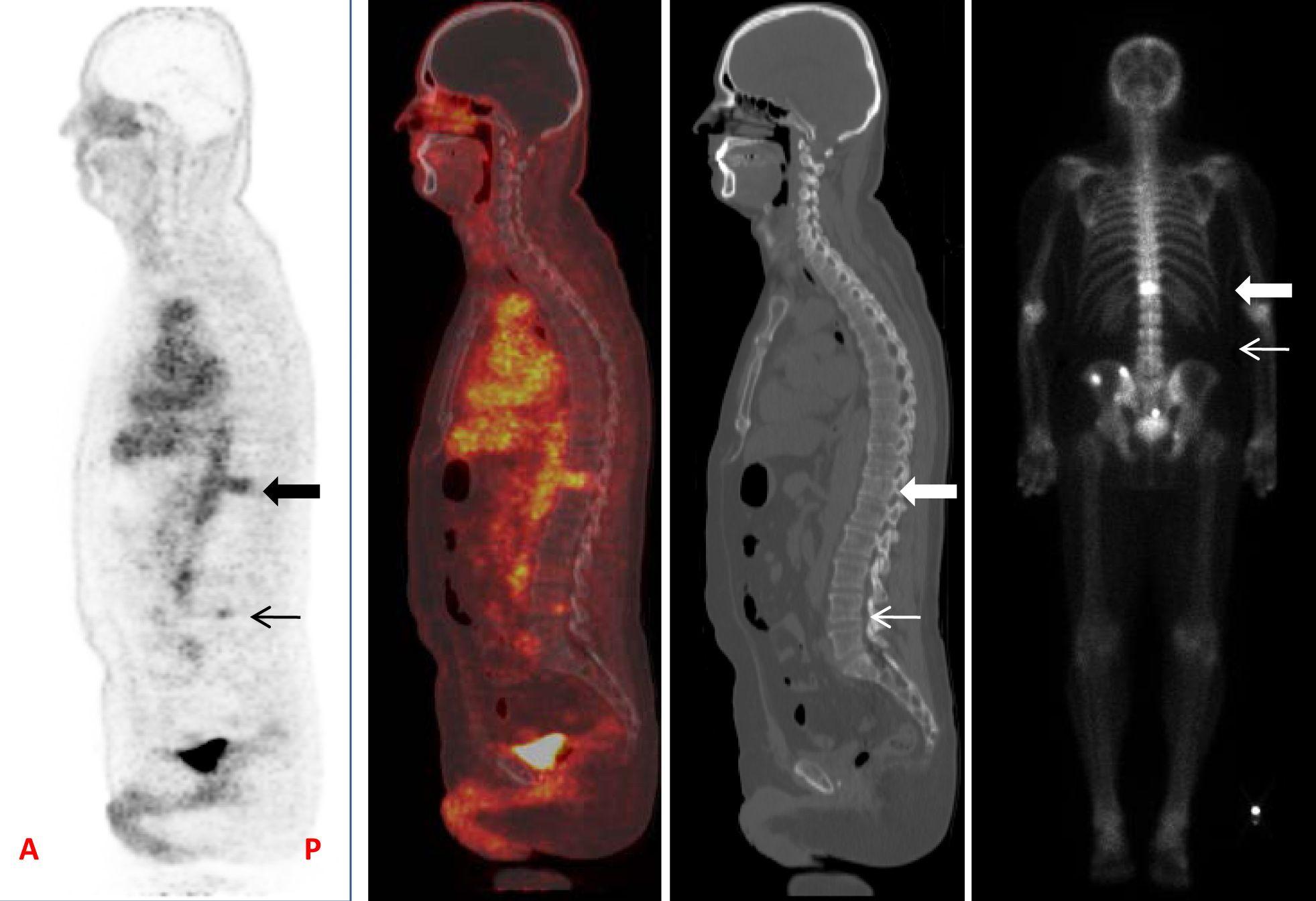 Bone Scan Prostate Cancer