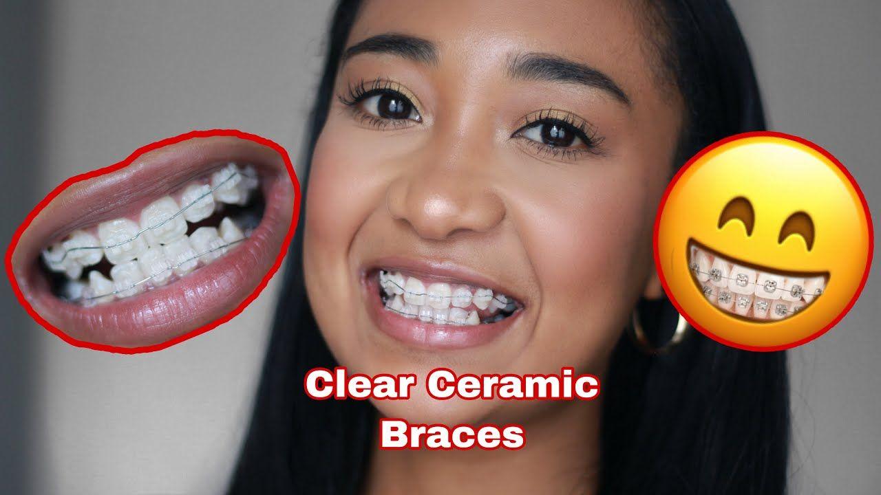 Vlog I Got Clear Ceramic Adult Braces South African Youtuber