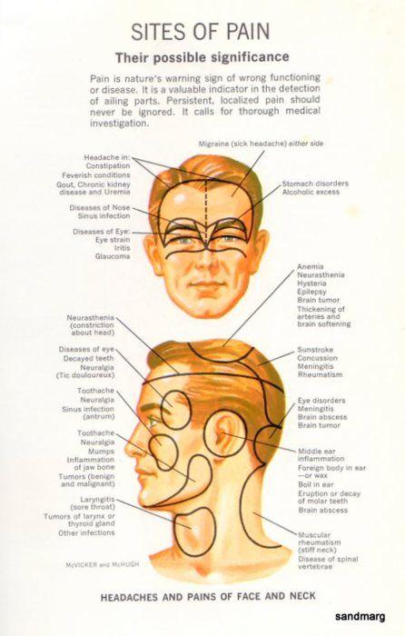 Pin By Carri Flanagan On Medical Headache Types Headache Chart Migraine