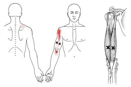 Oberarmmuskel | The Trigger Point & Referred Pain Guide | Education ...