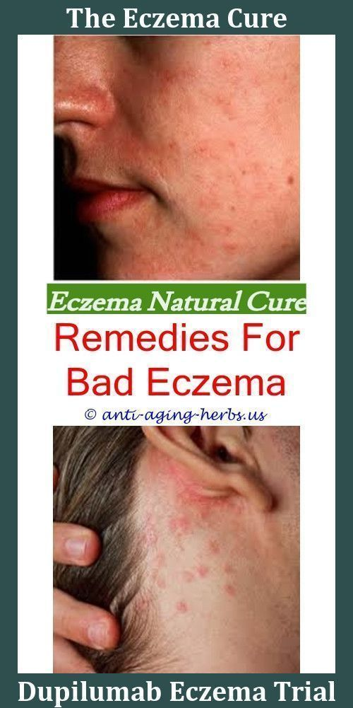 Eczema #Solutions #The #Eczema #Diet #Amazon #Is #Eczema #Considered #A #Fungus #Pictures #Of... #babyrashestreatment Eczema #Solutions #The #Eczema #Diet #Amazon #Is #Eczema #Considered #A #Fungus #Pictures #Of #People #With #Eczema #Images #Of #Eczema #On #Elbows,can #eczema #spread #all #over #your #body.Does #Bio #Oil #Help #Eczema,venous #eczema #wiki #- #eczema #rash #relief #reviews #on #prednisone #for #eczema. # #BioOilApplication #babyrashestreatment