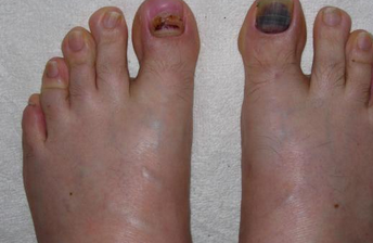 Bruised Under Toe Nail Cure
