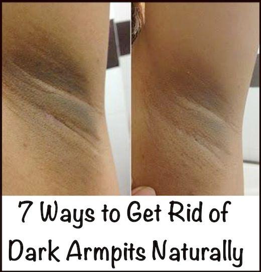 4123c0099c79fceaad2caddfb43effe0 - How To Get Rid Of Dark Underarms During Pregnancy