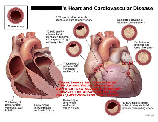 Diagrams of hearts and blockages google search heart health diagrams of hearts and blockages google search ccuart Image collections