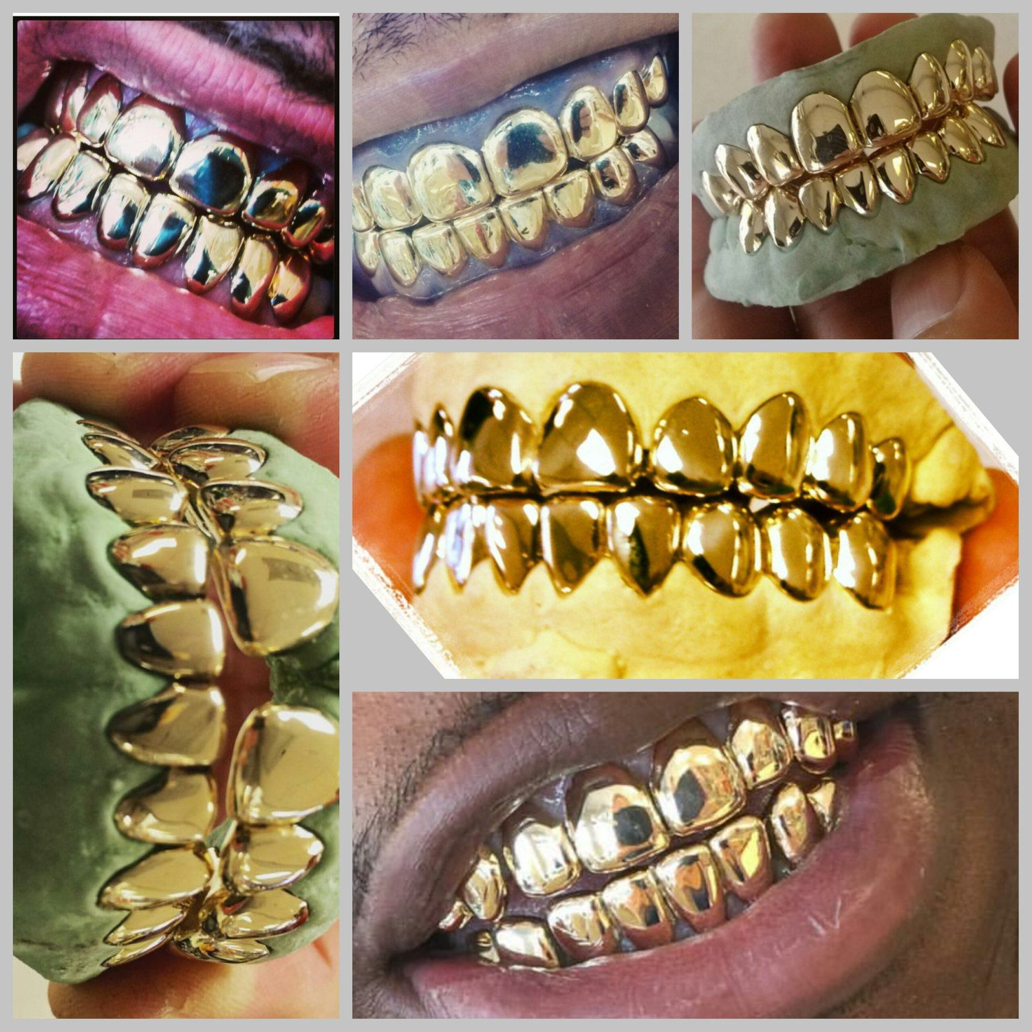 10k gold teeth, 8 top and 8 bottom by GRILLZGODZ on Etsy ...