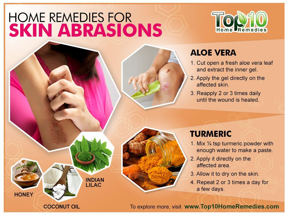 Treating Skin Abrasions At Home 8 Natural Remedies Top 10 Home Remedies Home Remedies For Skin Home Remedies Home Health Remedies