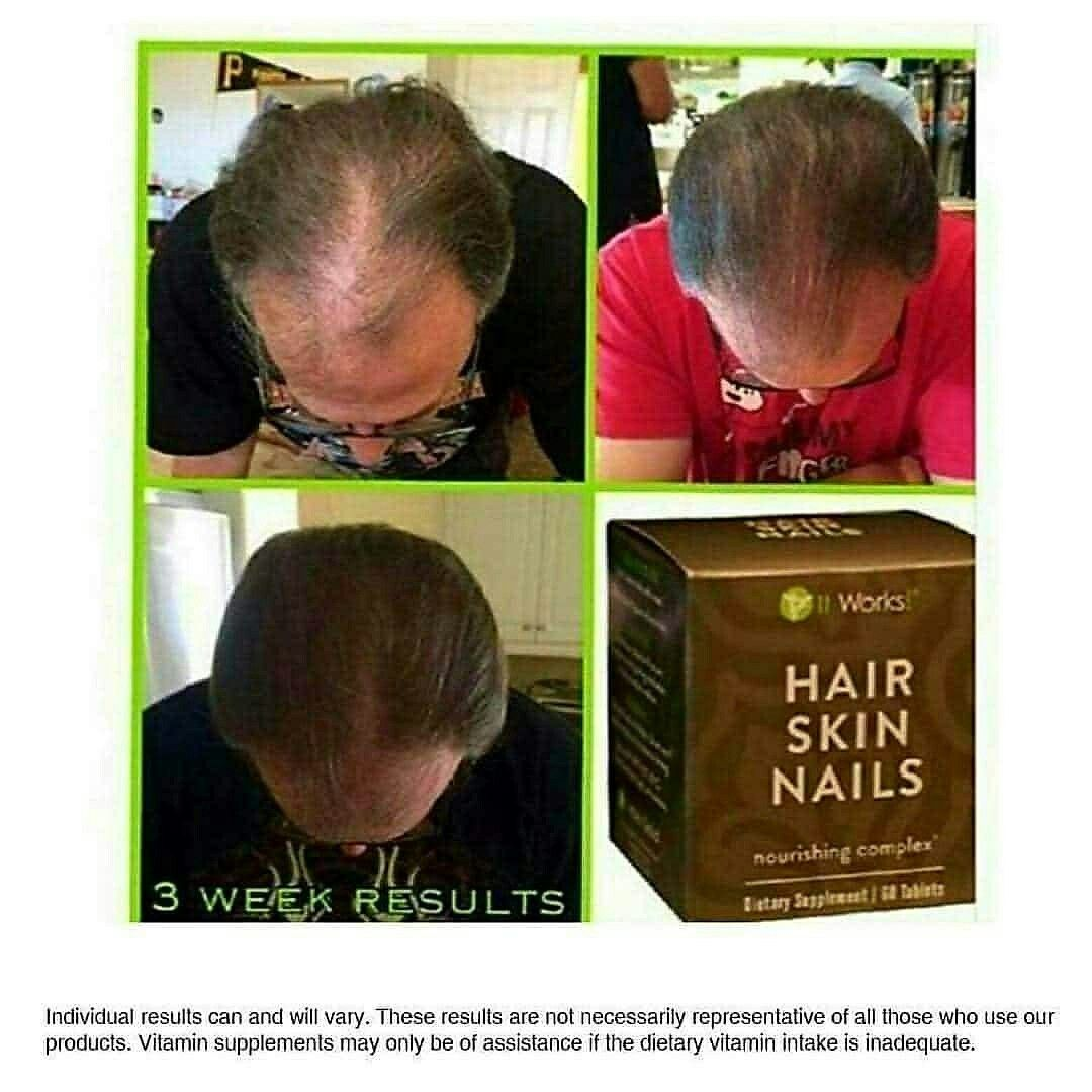 Hair Skin And Nails Vitamins For Men   Hairstyle Inspirations 2018