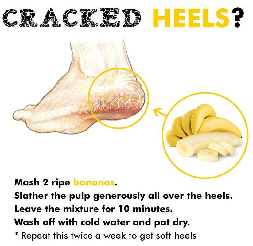 Keep your #heels smooth & soft, here's how! #SandhuProducts www.sandhuproducts.com