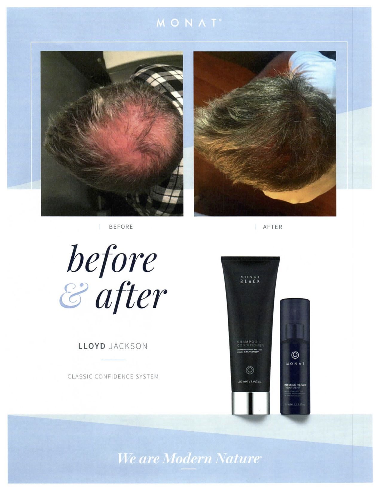 No One Likes Thinning Hair Monat Black 2 In 1 System Helps Nurture