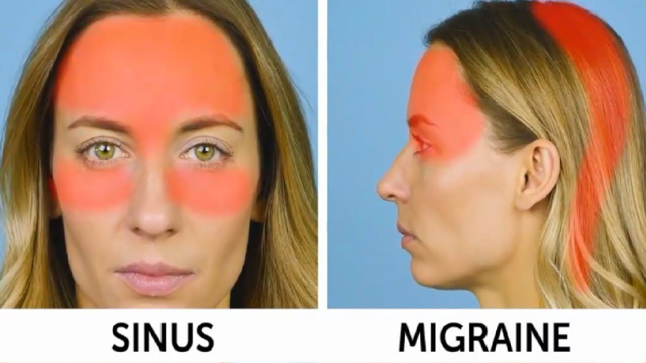Video: Acupressure points for different types of headaches ...