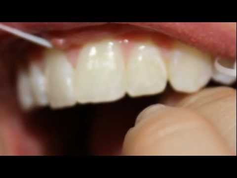 How to Get White Teeth Naturally!