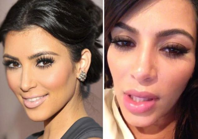 Kylie Jenner, Before and After Transformation